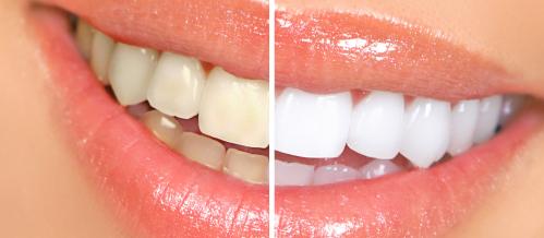 blanqueamiento-estetica-dentiun