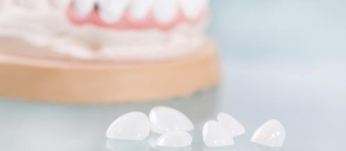 carillas-estetica-dentiun