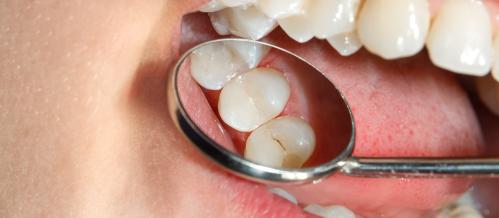 icrustraciones-odontologia-dentiun