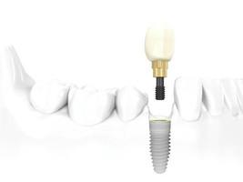 implante-unitario-dentiun