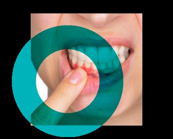 periodoncia_dentiun-web