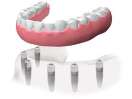 protesis-fija-dentiun