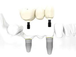 puente-sobre-implante-dentiun